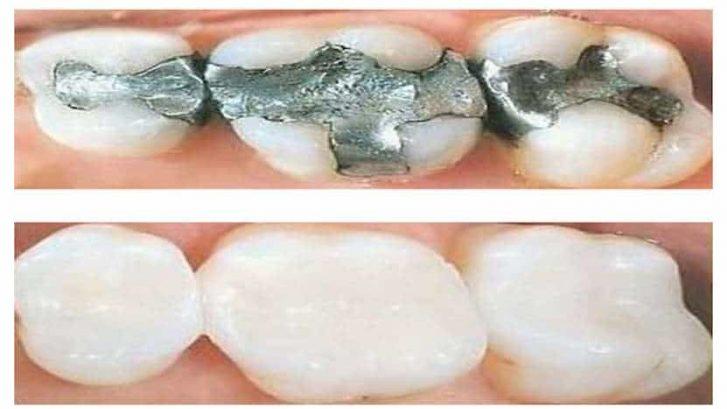 σφραγισμα δοντιου στομα και υγεια θεσσαλονικη