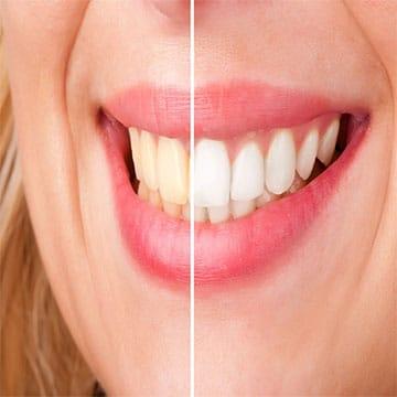 τμημα αισθητικης οδοντιατρικης - στομα και υγεια